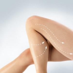 Anit Cellulite